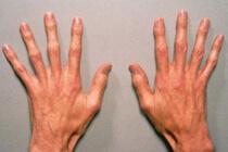 Синдром Марфана - Причины, симптомы и лечение. Журнал 16