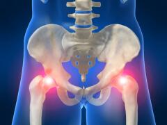 остеопороз фото