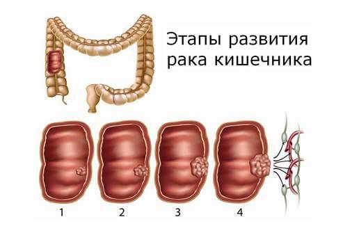 стадии рака прямой кишки фото