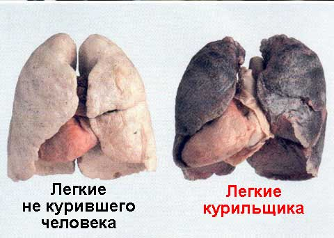 рак легких 2 фото