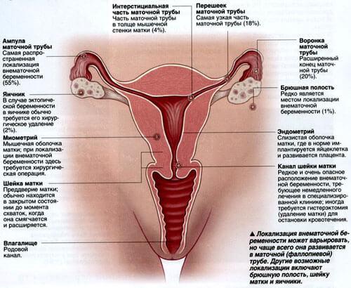 внематочная беременность фото2