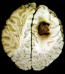 рак мозга фото