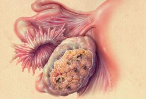 рак яичников фото