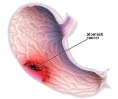 рак желудка фото