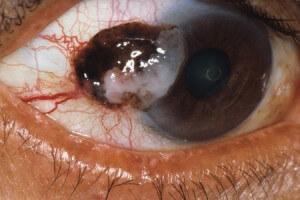 рак глаза фото