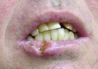 рак губы фото