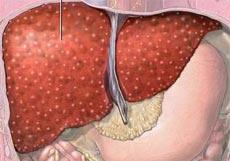 жировой гепатоз фото