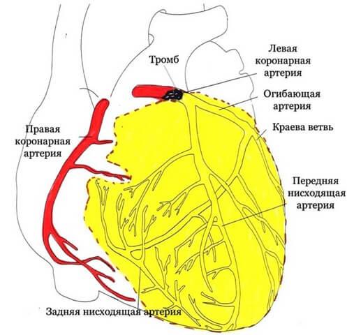 инфаркт фото
