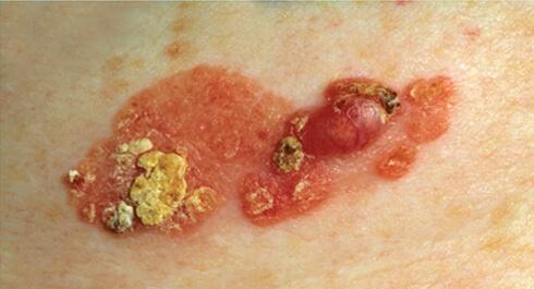 внутриэпидермальный рак фото