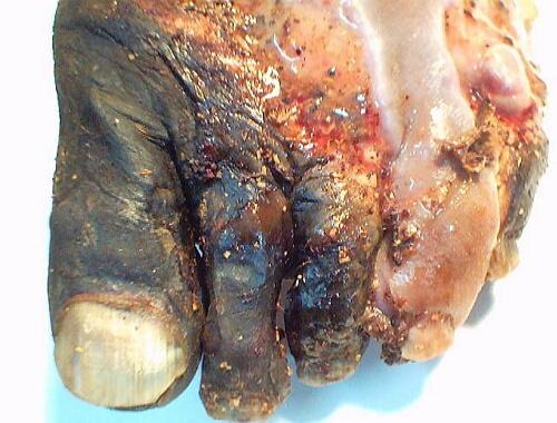 фото болезни бюргера