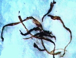 болезнь маргелона фото