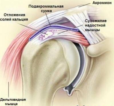 симптомы тендовагинита фото
