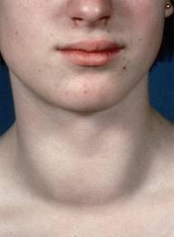 аутоиммунный тиреоидит фото
