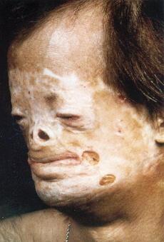 болезнь гюнтера фото