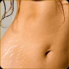 растяжки при беременности фото