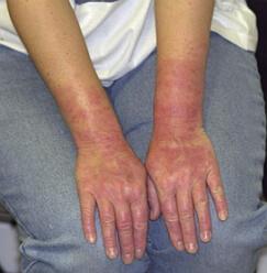 аллергия на латекс фото