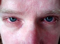 аллергия на глазах фото
