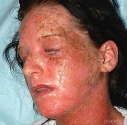 аллергия на краску для волос фото