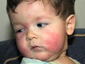 перекрестная аллергия на хомяка