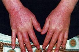 аллергический дерматит фото