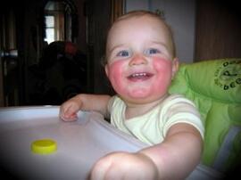 пищевая аллергия у детей фото