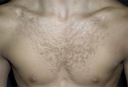 отрубевидный лишай на груди фото