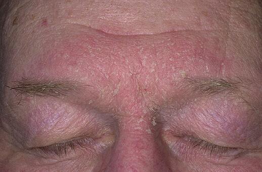 себорейный дерматит на лице фото
