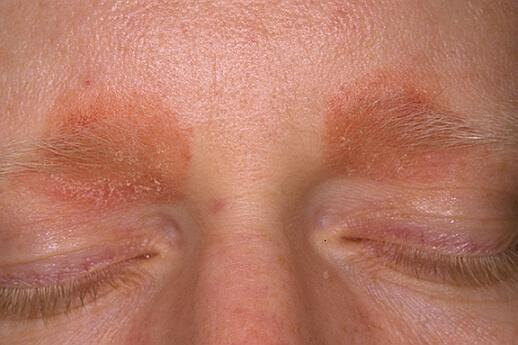 себорейный дерматит на глазах