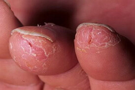 сухая экзема на пальцах