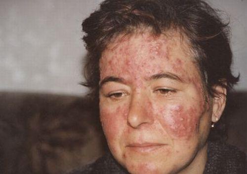 демодекс лица фото