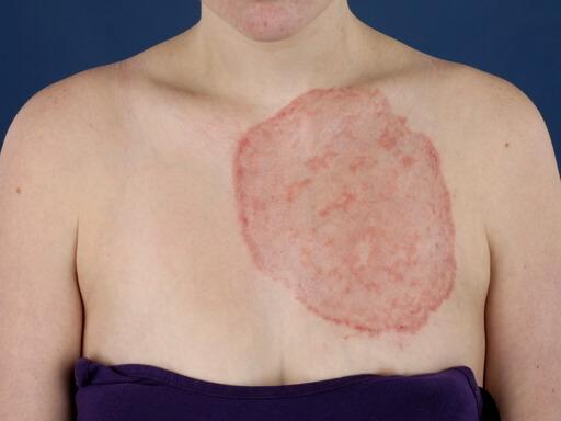 дерматомикоз кожи фото
