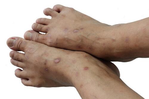 микробная экзема на ногах фото