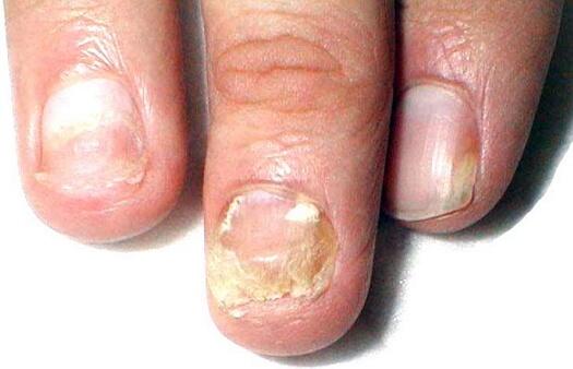 микоз ногтей фото