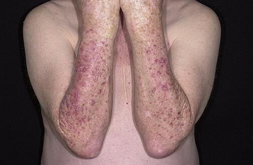 актинический кератоз фото