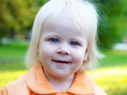альбинизм у человека фото