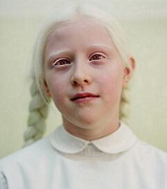 альбинос фото