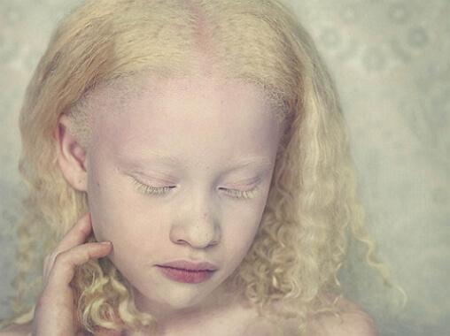 альбинос девочка фото