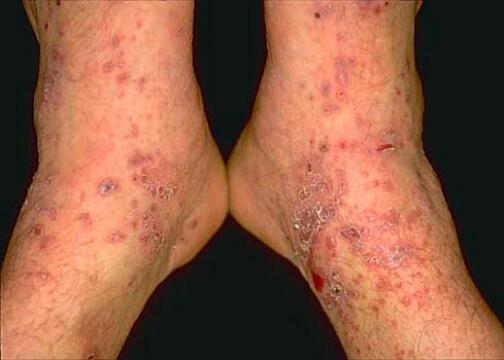фото лихен на ногах