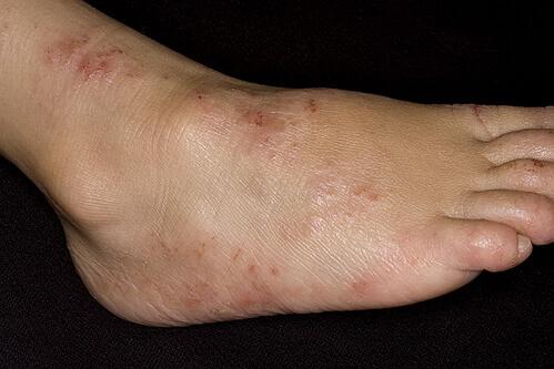 фото дерматита на ногах