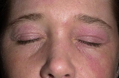 Полисорб от атопического дерматита у ребенка отзывы