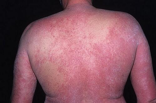 аллергия на лбу фото