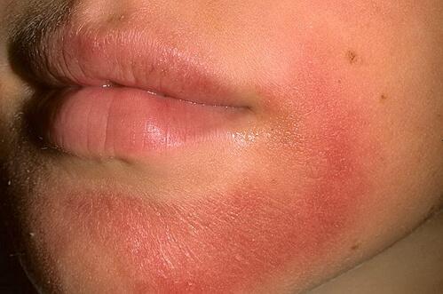 фото аллергического контактного дерматита