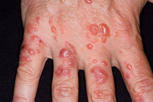 фото контактного дерматита на руках