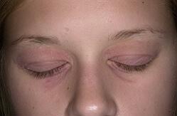 атопический дерматит взрослая стадия фото