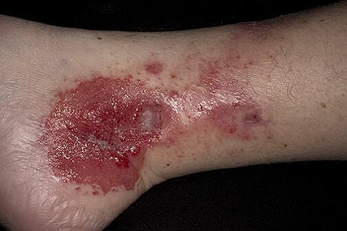фото контактного дерматита на ногах