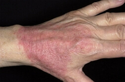 дерматит на руках фото