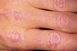 дерматомиозит пальцев рук фото