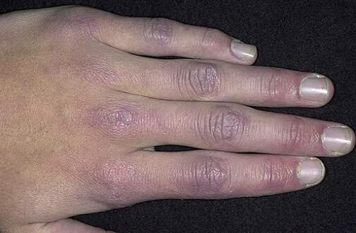 фото дерматомиозита