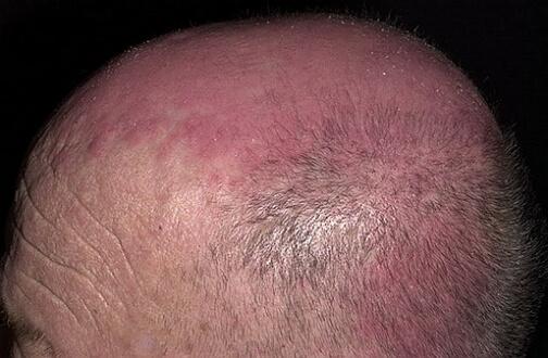 фото дерматомиозита головы