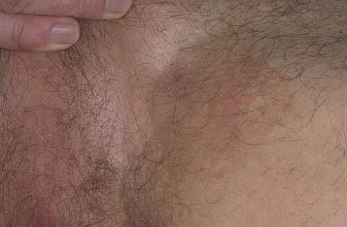 фото паховой эритразмы